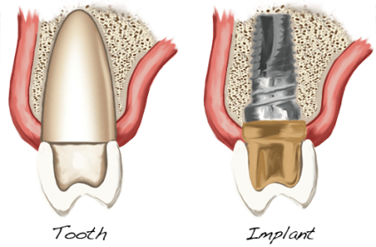 At Periodontal Associates, The Dental Implant Team we we are the market leader located in Aurora serving the Denver metro area and we are driving the development of new dental implant standards and protocols. We wish to share this exciting information with you and answer all of your questions.